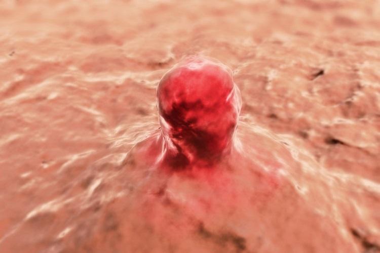 Soft tissue sarcoma