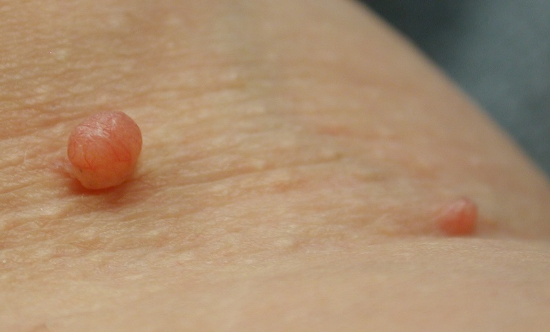 Skin polyp